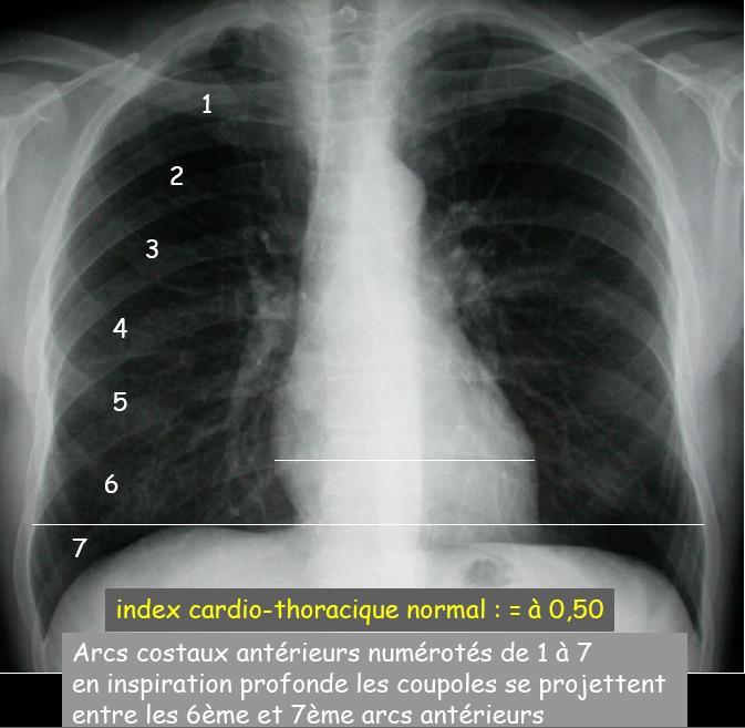 L'index Cardiaque