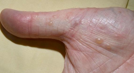 Les ongles endommagés au psoriasis
